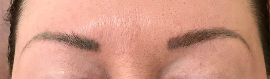 Eyebrow Tatoo Removal Before